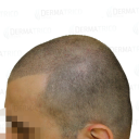 Tricopigmentazione effetto rasato